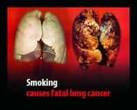 """Gesunde Lunge versus Raucherlunge: """"Rauchen kann Lungenkrebs auslösen"""""""