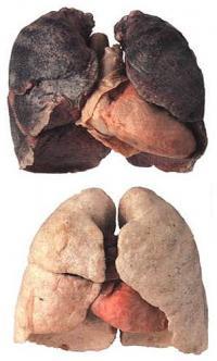 Raucherlunge (oben) und Nichraucherlunge (unten). Die Raucherlunge ist deutlich schwarz verfärbt.